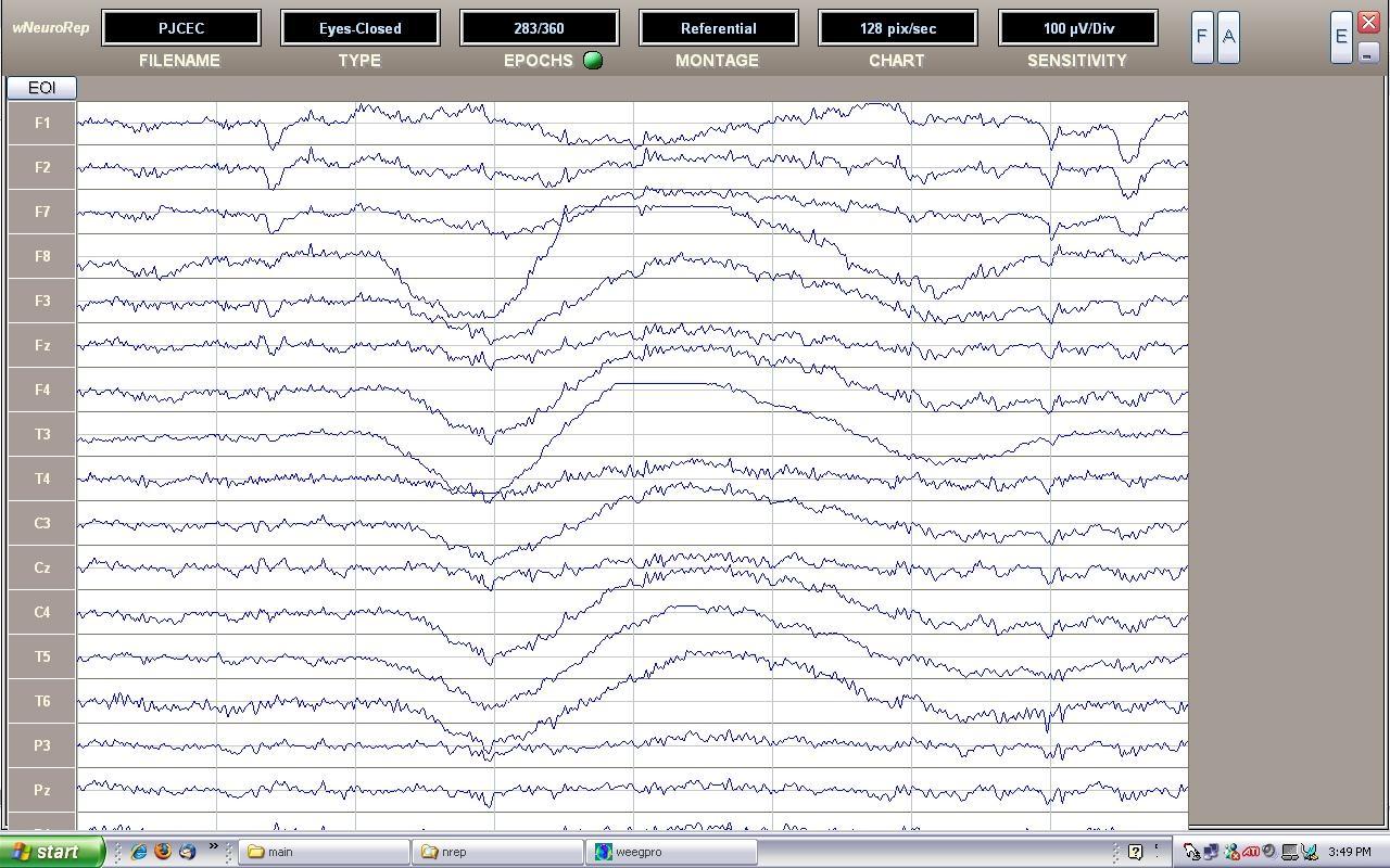 initial_raw_EEG